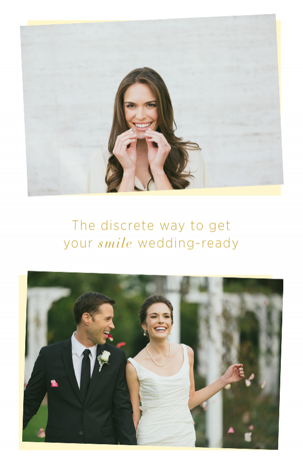 Get a Wedding-Ready Smile with Invisalign